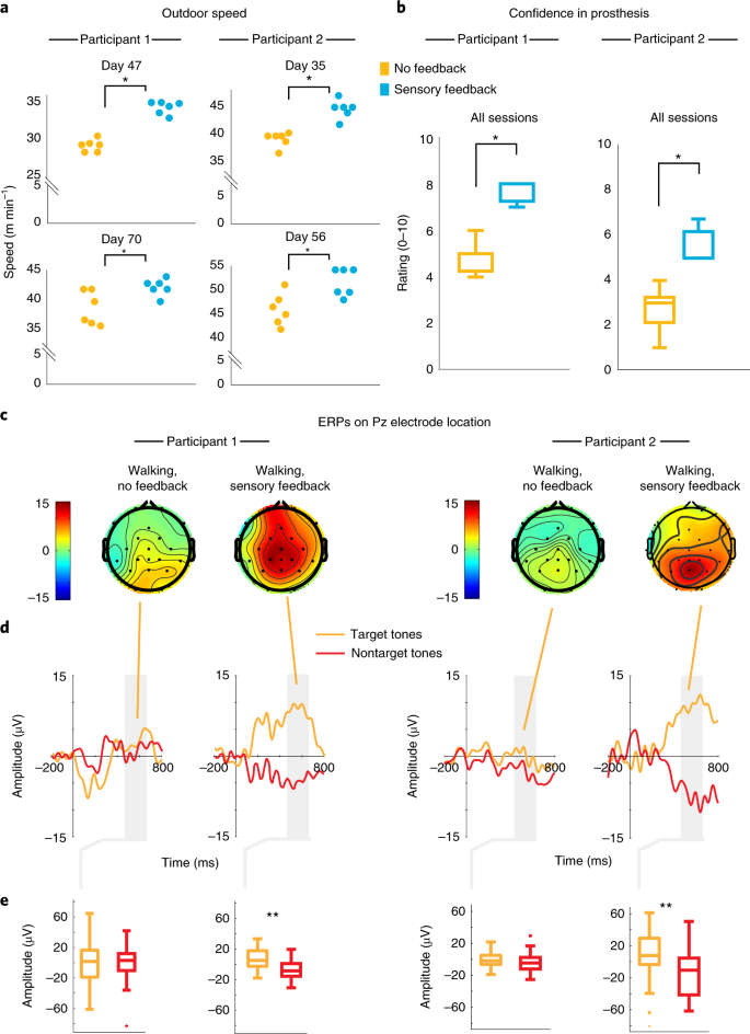 Sensory feedback restoration in leg amputees improves