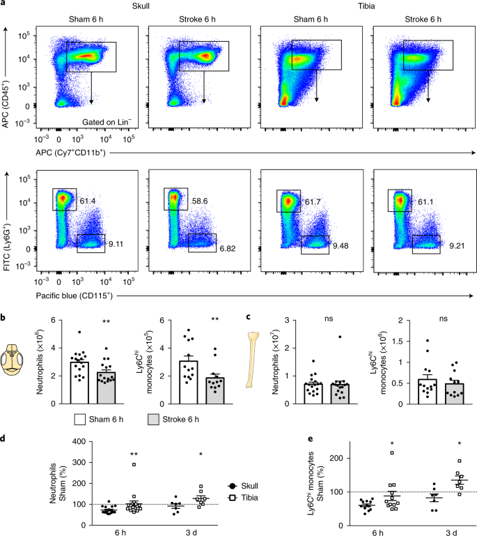 Direct vascular channels connect skull bone marrow and the