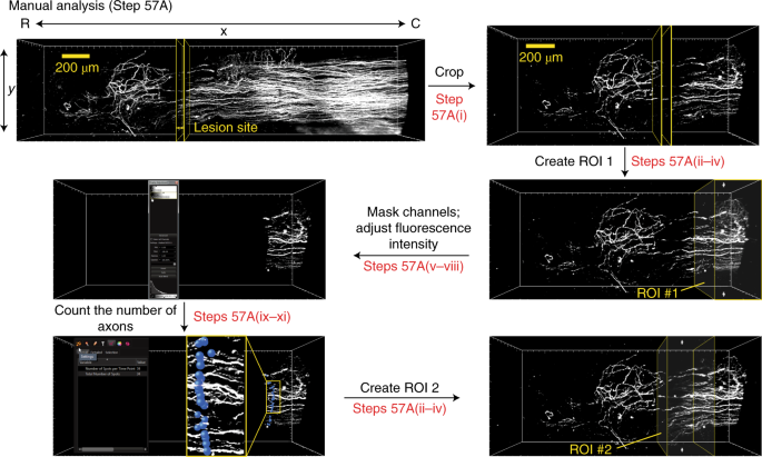 High-resolution 3D imaging and analysis of axon regeneration