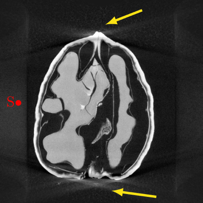 A cone-beam X-ray computed tomography data collection designed for mac