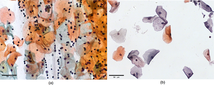 Figure 1: Illustration of (a) conventional cytology and (b) liquid-based cytology.
