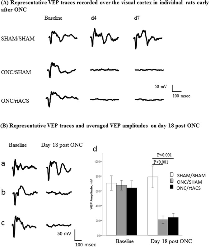 Electrical brain stimulation induces dendritic stripping but