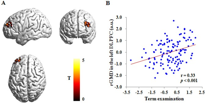 Poverty Linked To Brain Structure In >> Examining Gray Matter Structure Associated With Academic Performance