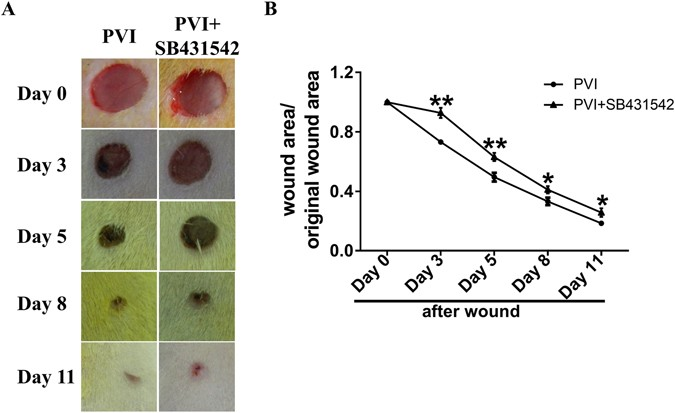 Transforming growth factor β plays an important role in