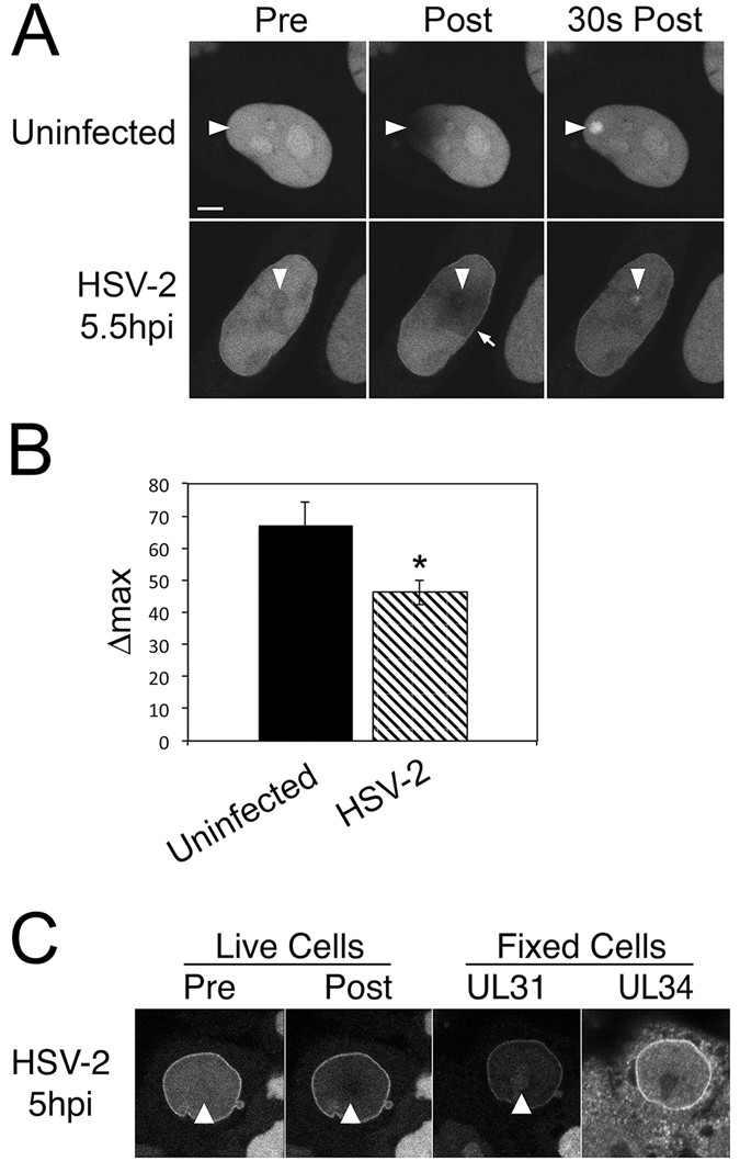 The Herpesvirus Nuclear Egress Complex Component, UL31, Can Be