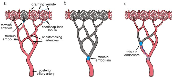 Functional end-arterial circulation of the choroid assessed by using