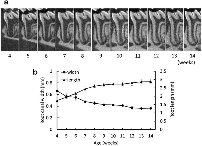 Development of a root canal treatment model in the rat