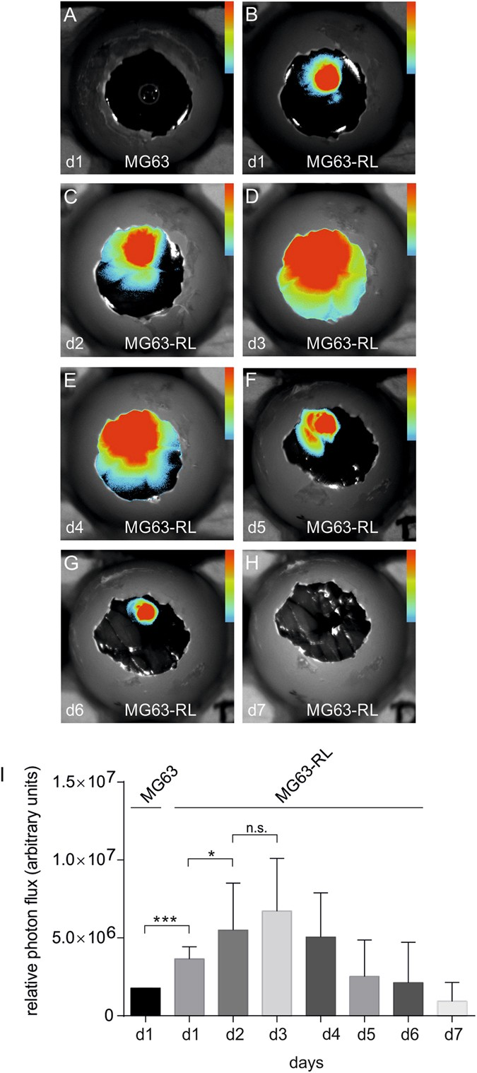 Non-invasive imaging of engineered human tumors in the living