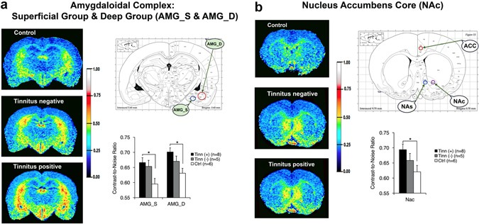 Blast-Induced Tinnitus and Elevated Central Auditory and