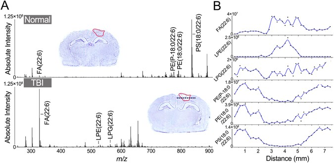 Monitoring changes of docosahexaenoic acid-containing lipids