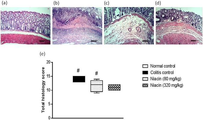 Effect Of Niacin On Inflammation And Angiogenesis In A Murine Model Of Ulcerative Colitis Scientific Reports