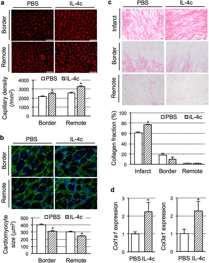 IL-4 as a Repurposed Biological Drug for Myocardial