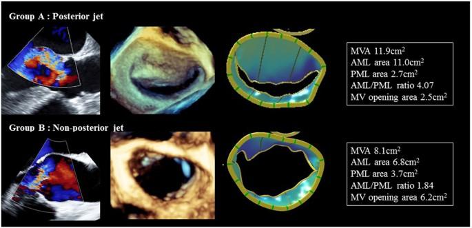 Effect of aortic regurgitant jet direction on mitral valve