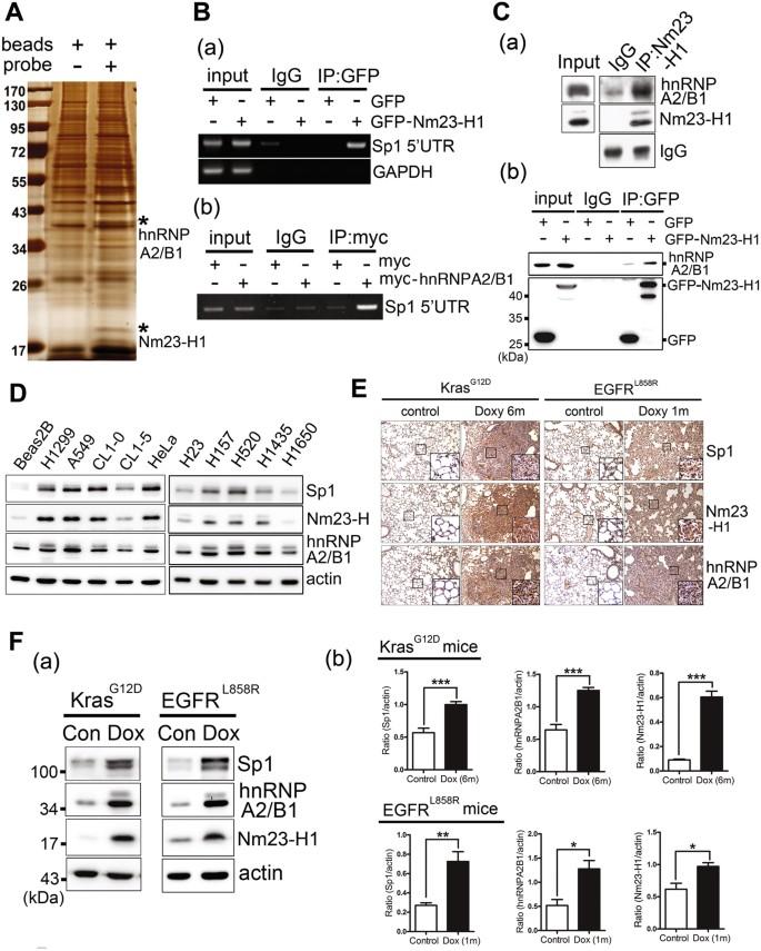 Nm23-H1-stabilized hnRNPA2/B1 promotes internal ribosomal