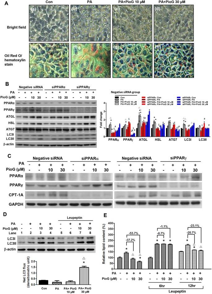Pioglitazone Enhances Cytosolic Lipolysis, β-oxidation and
