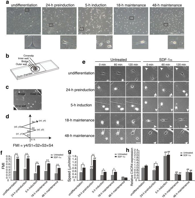 Regulation of focal adhesion turnover in SDF-1α-stimulated