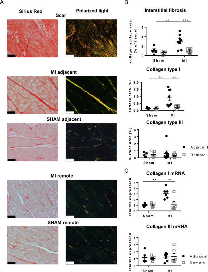 Global fibroblast activation throughout the left ventricle