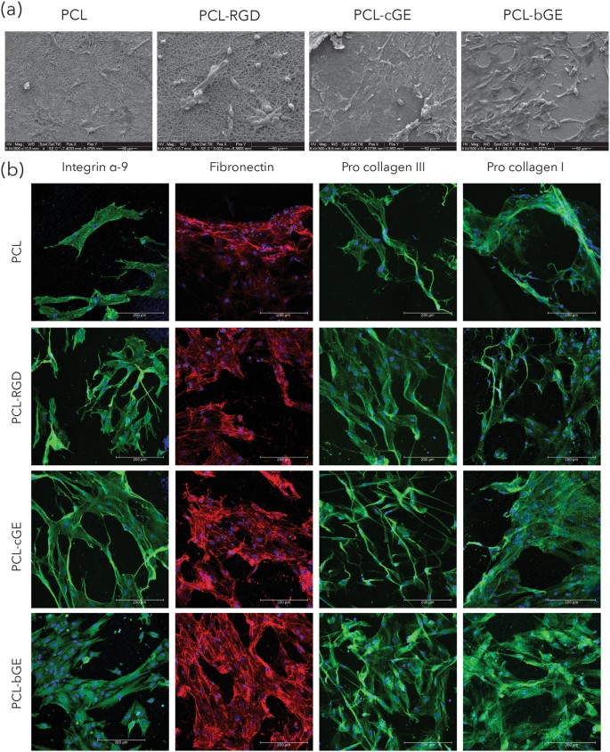 Biocomposite nanofiber matrices to support ECM remodeling by