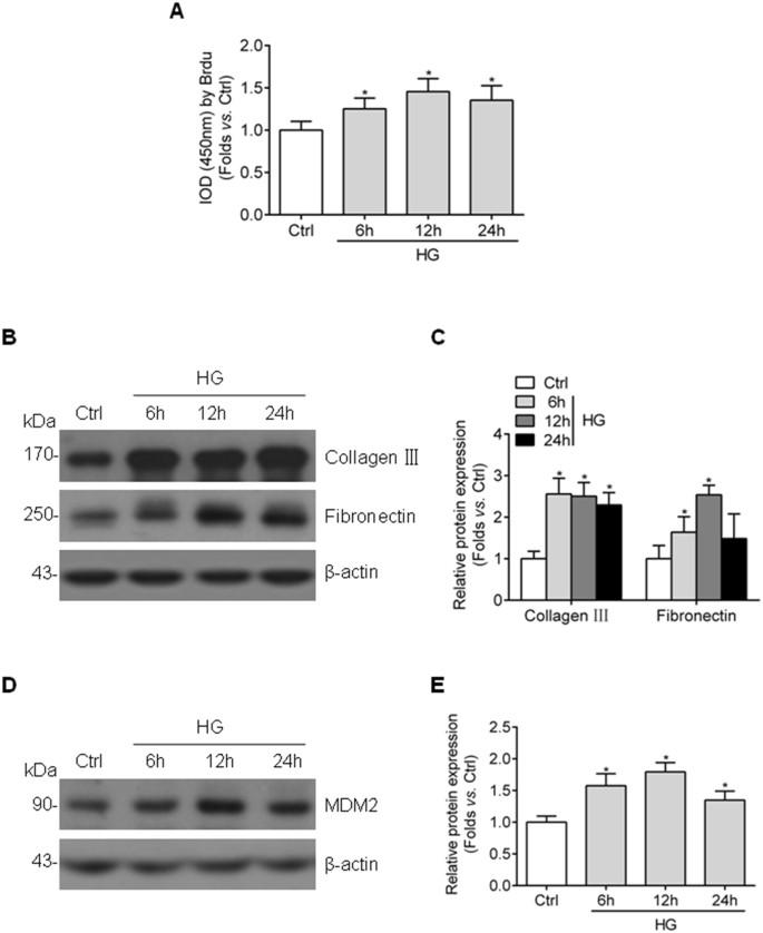 MDM2 Contributes to High Glucose-Induced Glomerular