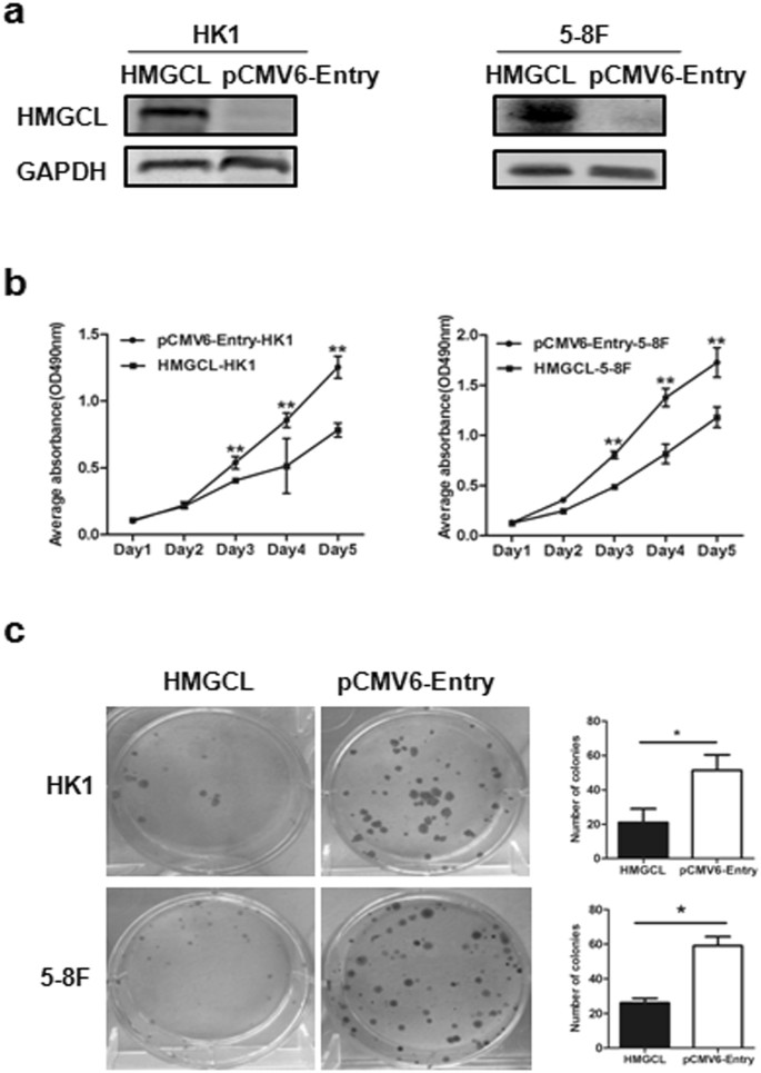 Inactivation of HMGCL promotes proliferation and metastasis of