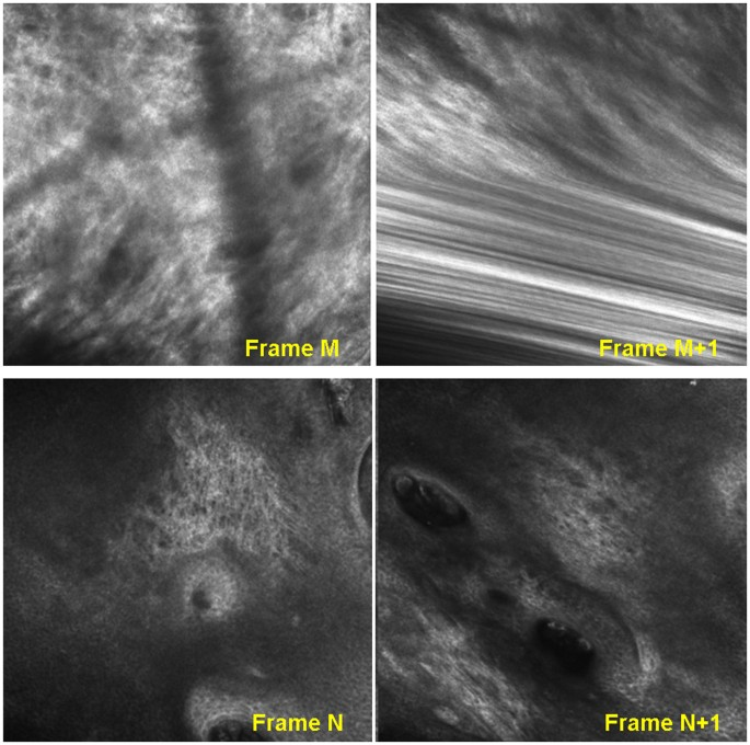 Automated video-mosaicking approach for confocal microscopic imaging