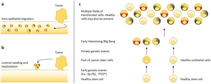 bladder cancer genetic heterogeneity