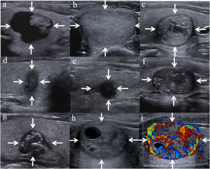 Malignancy Risk Stratification Of Thyroid Nodules Comparisons Of