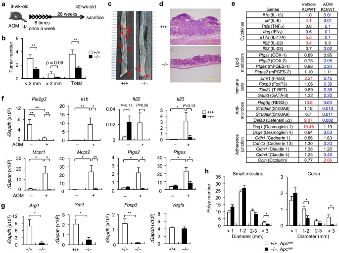 Group III phospholipase A 2 promotes colitis and colorectal cancer
