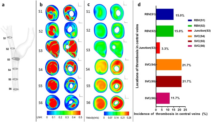 Numerical Simulation of Hemodynamic Changes in Central Veins