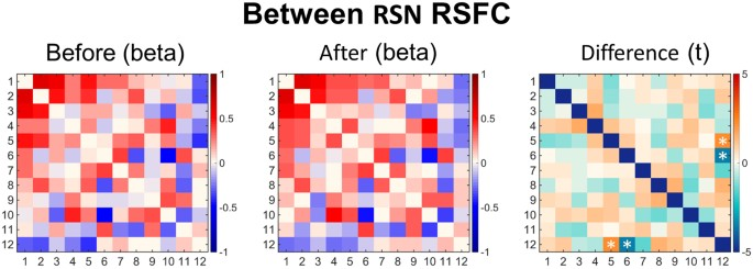 Psilocybin For Treatment Resistant Depression Fmri Measured Brain