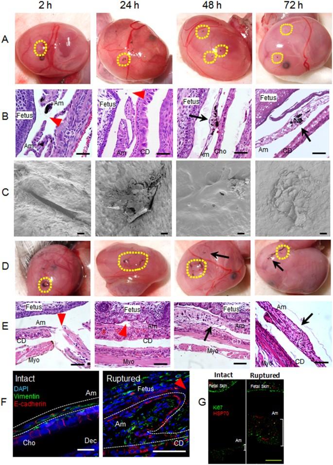 Healing of Preterm Ruptured Fetal Membranes | Scientific Reports