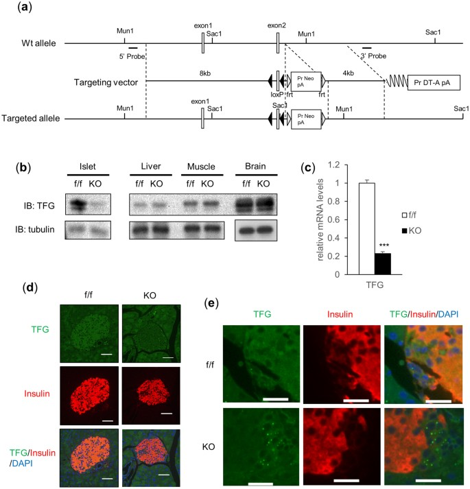 Trk-fused gene (TFG) regulates pancreatic β cell mass and