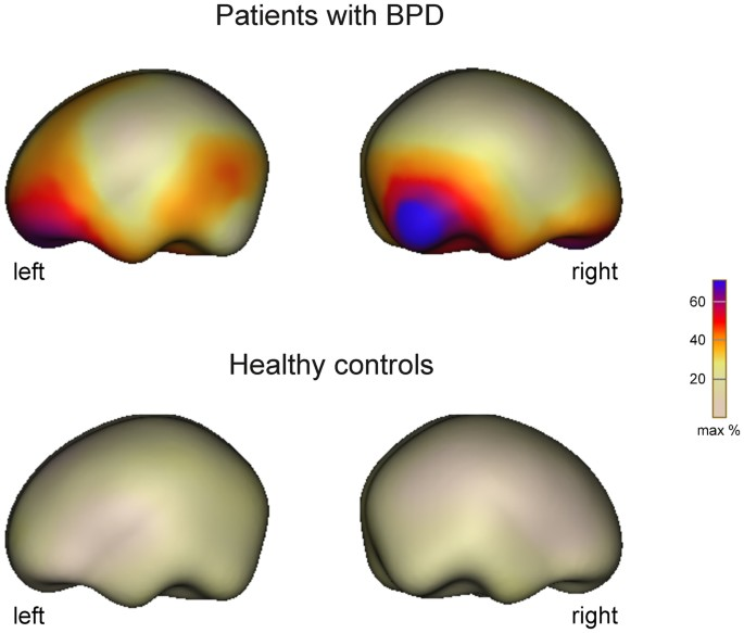 Brain activity to transitional objects in patients with