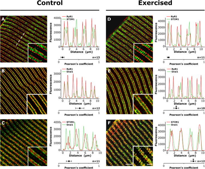 Exercise-dependent formation of new junctions that promote STIM1