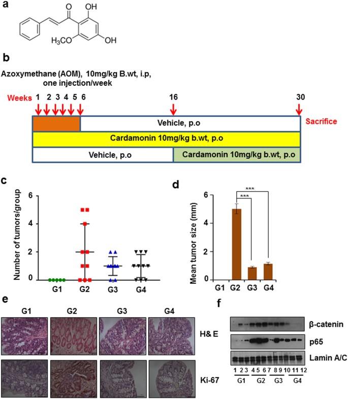 Cancer colon g2, ATLAS DE MORFOPATOLOGIE