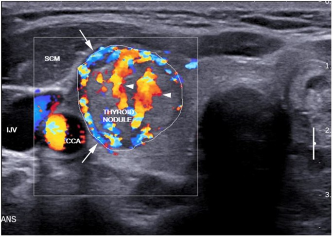 Computer Aided Assessment Of Regional Vascularity Of Thyroid Nodules For Prediction Of Malignancy Scientific Reports