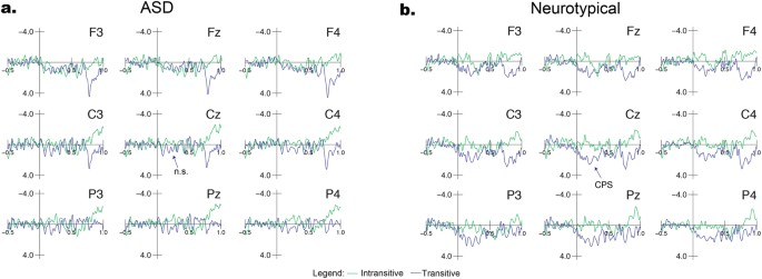 Language and music phrase boundary processing in Autism