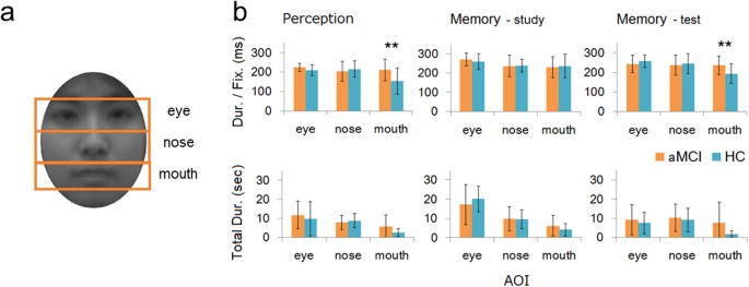 Face-specific memory deficits and changes in eye scanning