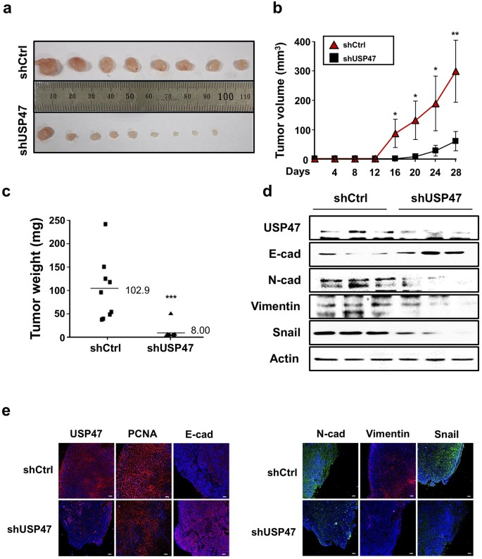 Hypoxia induces epithelial-mesenchymal transition in colorectal