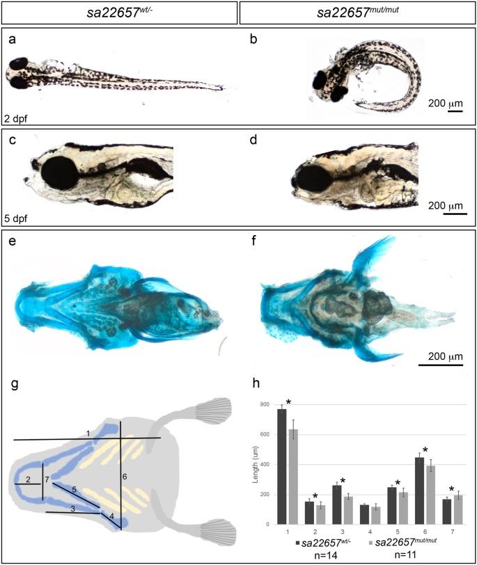 Novel KIAA0753 mutations extend the phenotype of skeletal