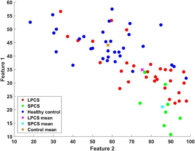 Quantitative measurement of post-concussion syndrome Using