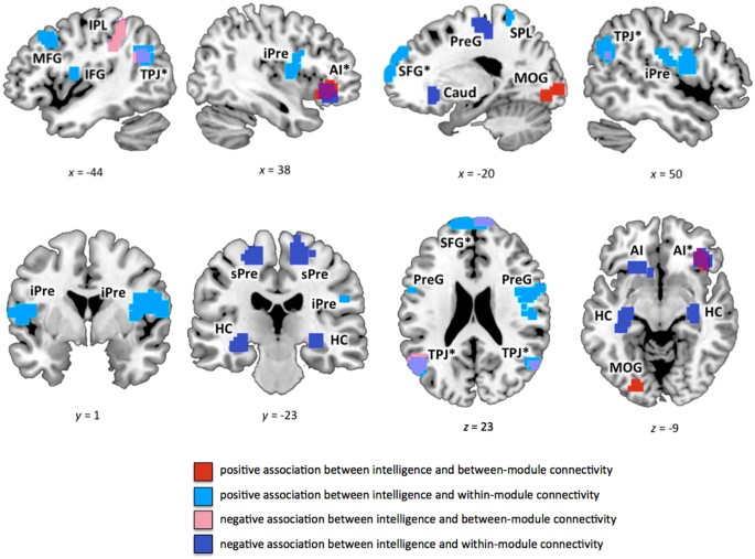 Intelligence is associated with the modular structure of