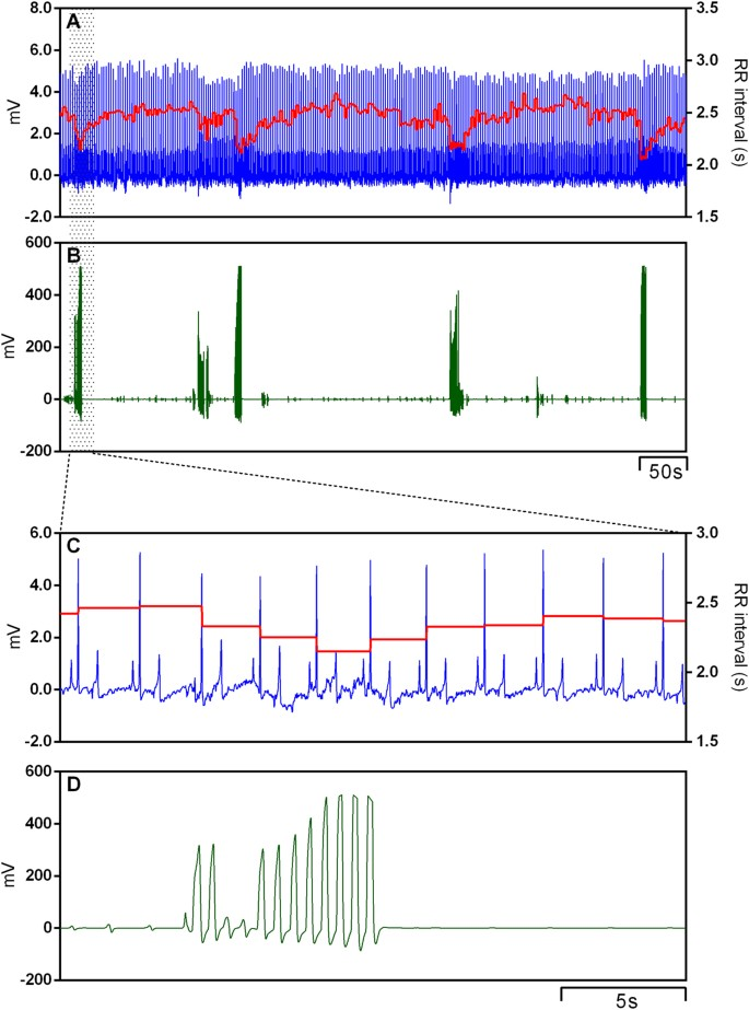 Analysis of the respiratory component of heart rate variability in