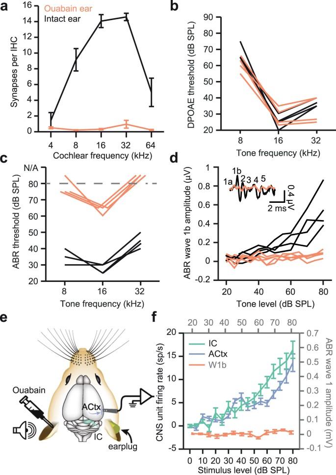 Pharmacological modulation of Kv3.1 mitigates auditory midin ... on