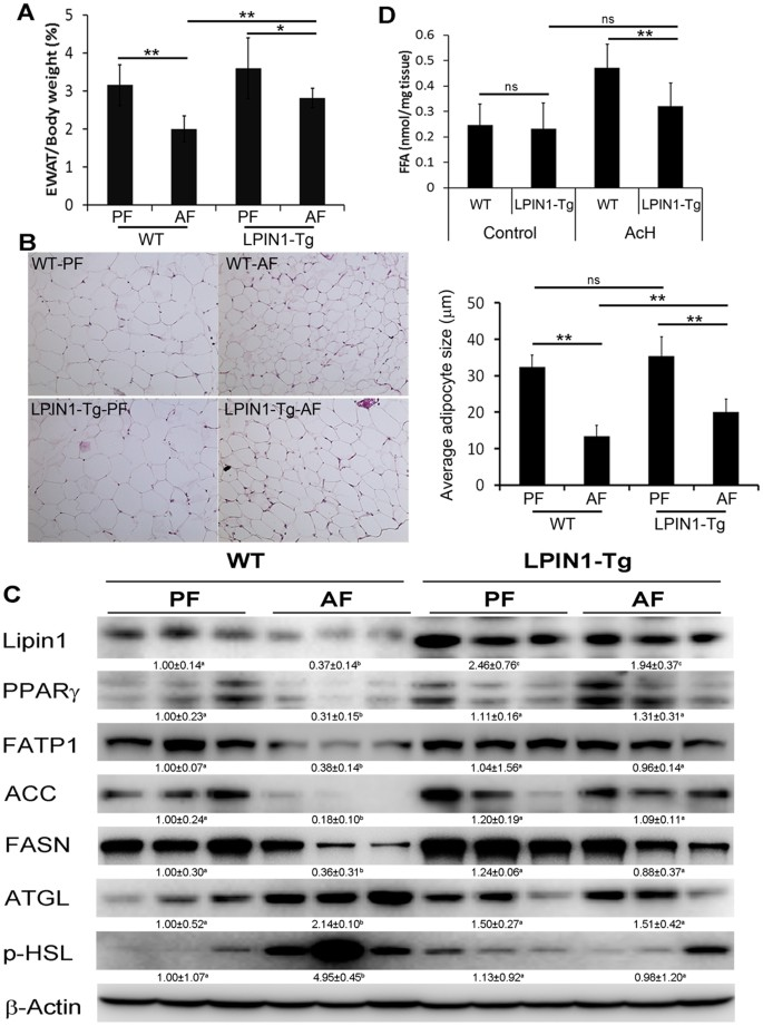 Adipose-specific lipin1 overexpression in mice protects against