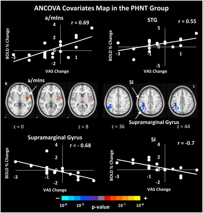 Phantom Acupuncture Induces Placebo Credibility and