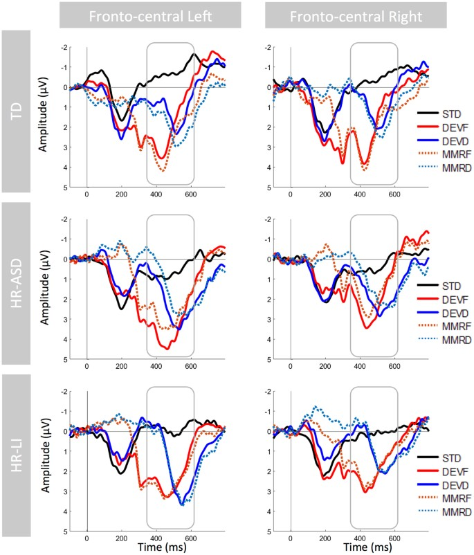 Distinct ERP profiles for auditory processing in infants at-risk for