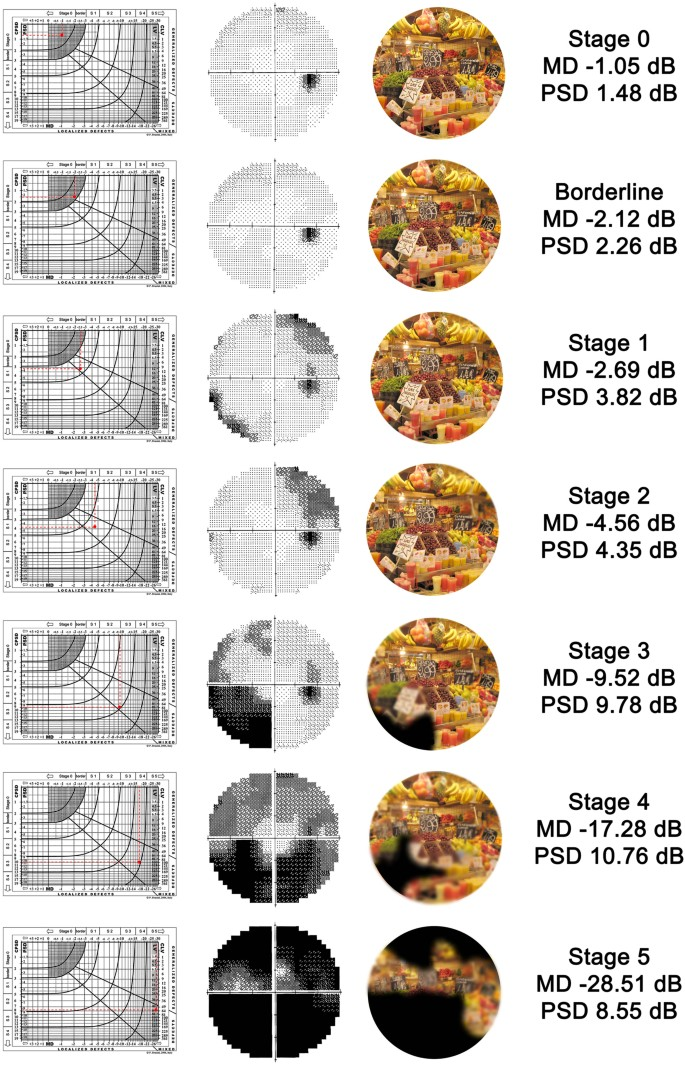 Visual field loss and vision-related quality of life in the