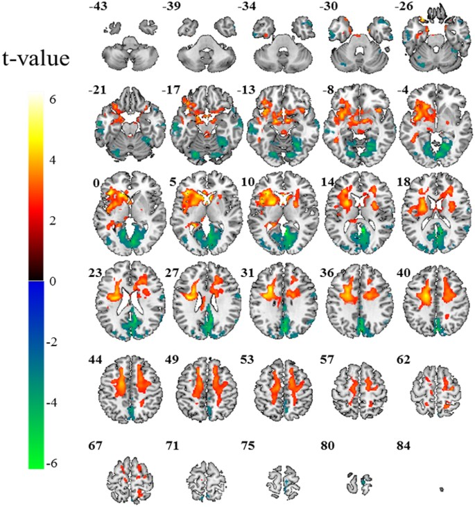 Altered power spectral density in the resting-state