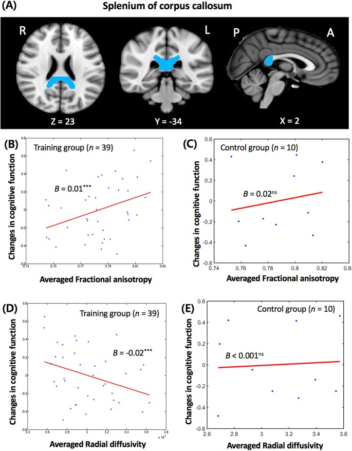 Neural predictors of cognitive improvement by multi
